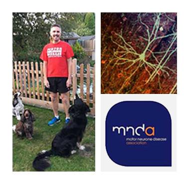 Motor Neurone Disease Image